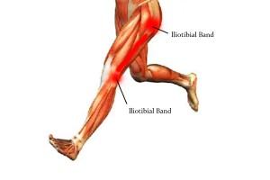 Боль с наружной стороны колена у бегунов